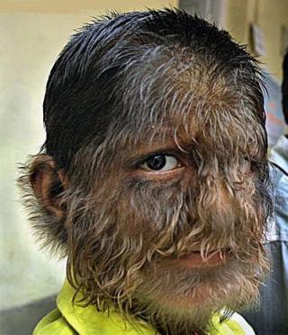 http://news.softpedia.com/images/news2/Meet-the-Werewolf-Boy-2.jpg