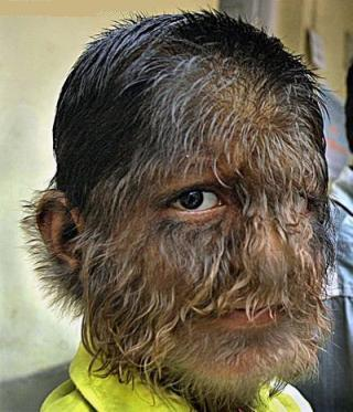 Top-14-Strangest-Diseases-5 - Top 14 Strangest Diseases - Weird and Extreme