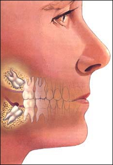 Why-Do-We-Have-Wisdom-Teeth-2 - Why Do We Have Wisdom Teeth? - Activation and inhibition - Science and Research